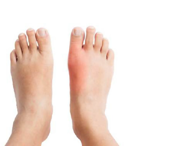 النقرس                                                                                                                                                                                                                   Gouty Arthritis