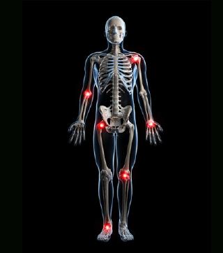أمثلة لأمراض الروماتيزم                                                                                                                                                              Examples Of Rheumatic