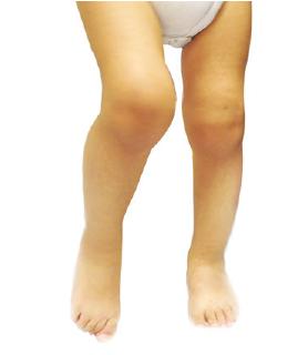 التهاب المفاصل عند الأطفال                                                                                                                                                 Inflammatory Arthritis in Children