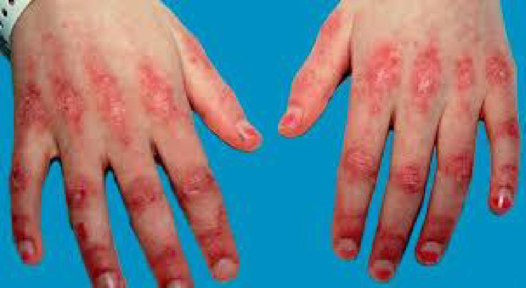 الاعتلال العضلي الالتهابي                                                                                                                                                                                        Inflammatory Myositis