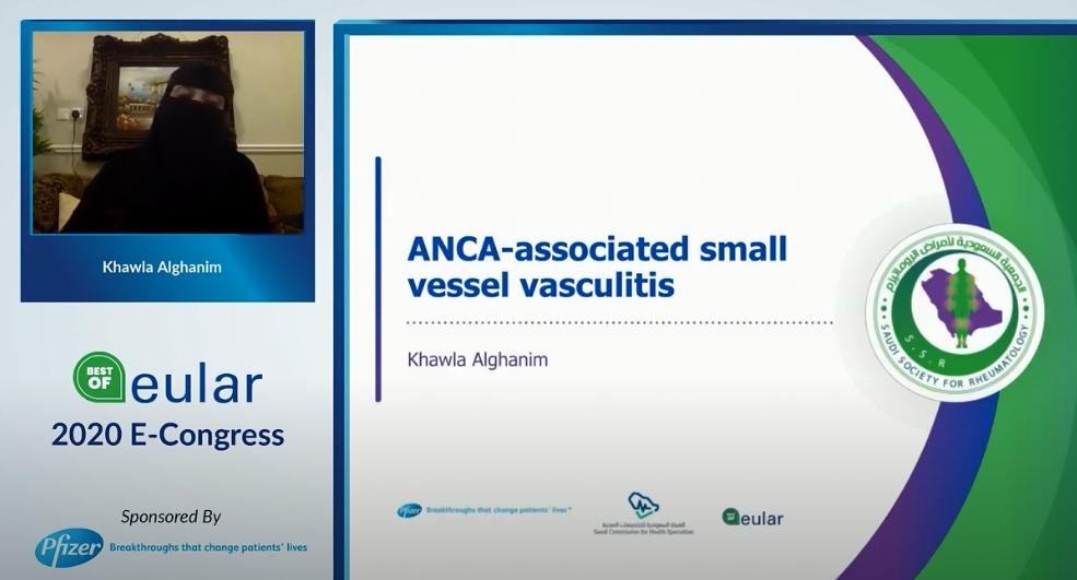 ANCA- associated Vasculitis and Behcet Disease