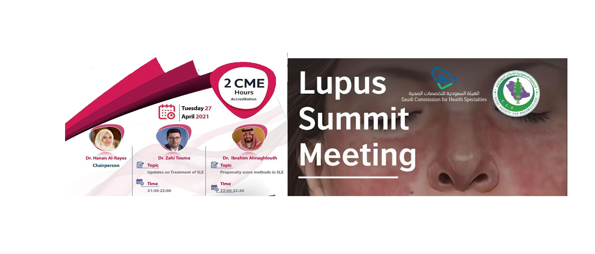 lupus summit meeting
